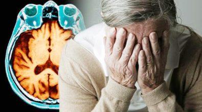 SALUTE  Alzheimer, ricercatori italiani scoprono molecola che blocca la malattia