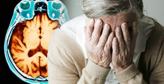 SALUTE |Alzheimer, ricercatori italiani scoprono molecola che blocca la malattia