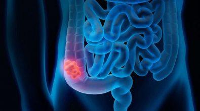 Tumore al colon-retto, la speranza per la cura arriva da Reggio Calabria