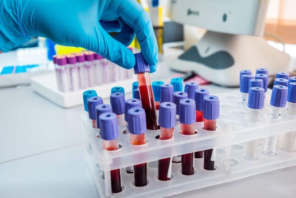 Coronavirus Reggio Calabria, ieri 142 nuovi positivi. Il bollettino dell'Asp