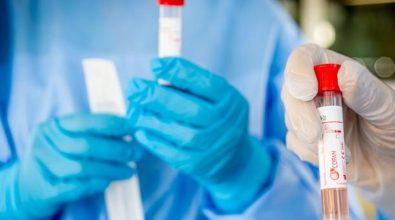 Coronavirus Reggio Calabria, 2 morti e 43 nuovi casi. Il bollettino regionale